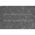 Diabetic Mouse Pancreatic Microvascular Endothelial Cells